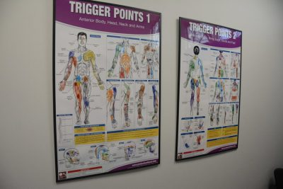 Trigger Points chart at Cornerstone Therapy & Wellness located in St.Catherine's Ontario.